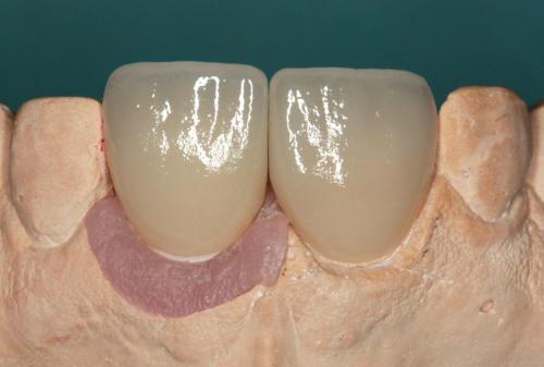 implant07