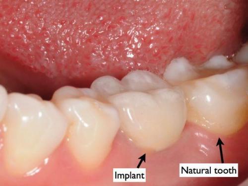 implant08